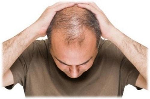 Liệu pháp ăn uống chữa rụng tóc
