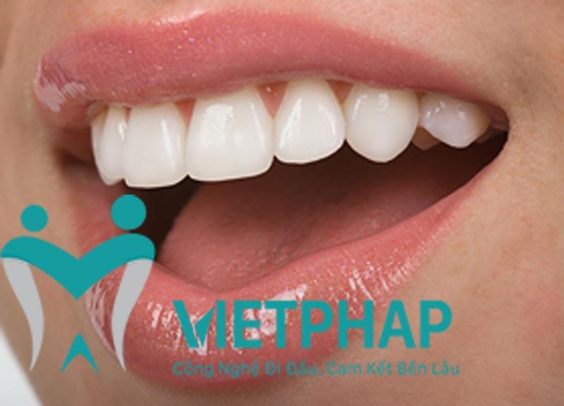 Loại răng sứ là một yếu tố quyết định kết quả sau khi phục hình