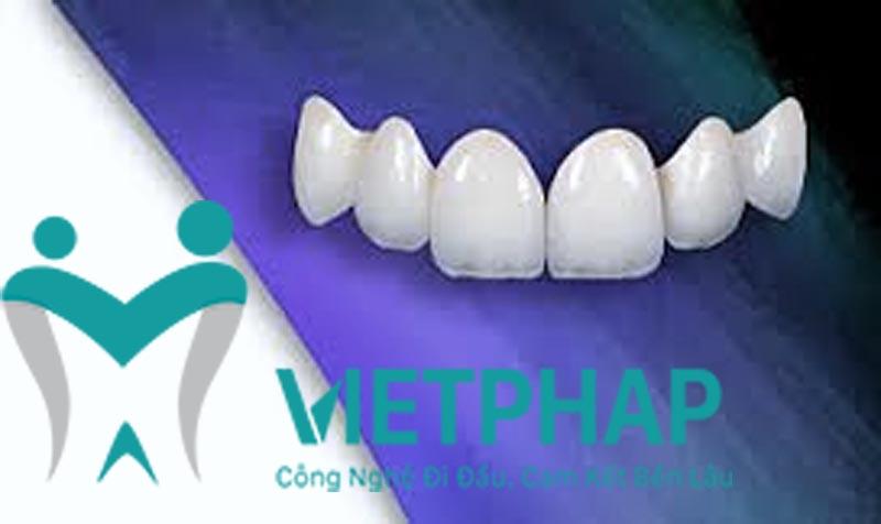 Răng toàn sứ có chất lượng và tính thẩm mỹ cao