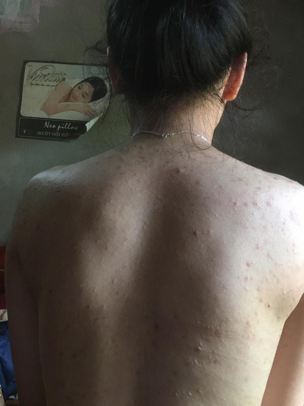 Mụn lưng chi chít trước khi dùng trị mụn goldskin